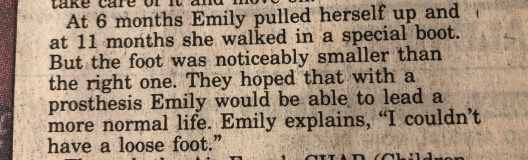 """""""At 6 months Emily pulled herself up and at 11 months she walked in a special boot. But the foot was noticeably smaller than the right one. They hoped that with a prosthesis Emily would be able to lead a more normal life. Emily explains, 'I couldn't have a loose foot.'"""""""
